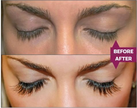 Before and After Photos | Chicago Lashes